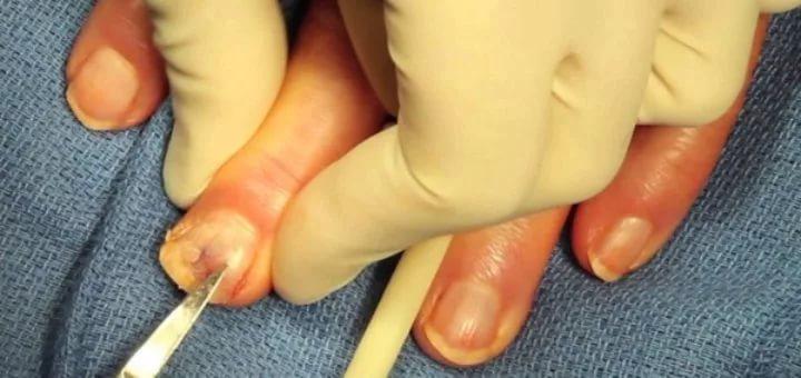 Вывести ногтевой грибок в домашних условиях