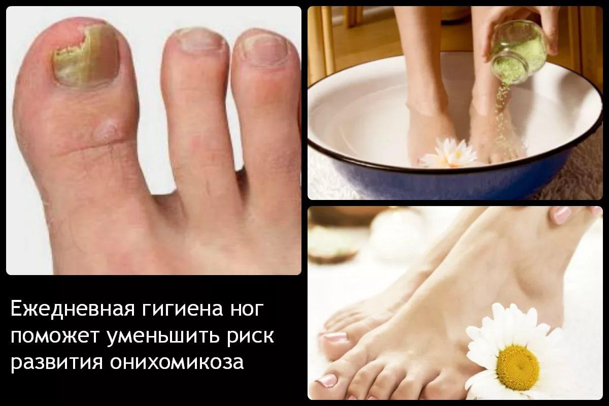 Лечить ногти в домашних условиях
