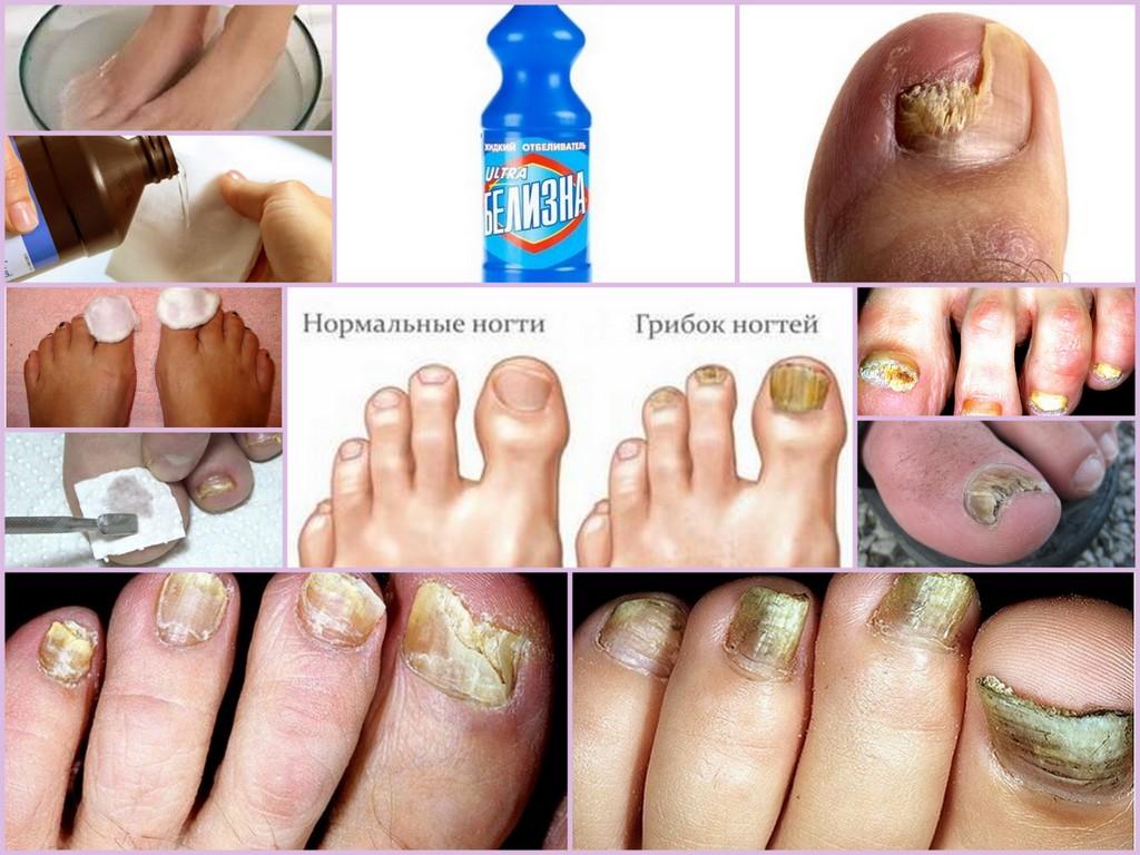 Рецепт от грибка ногтей на ногах в домашних условиях