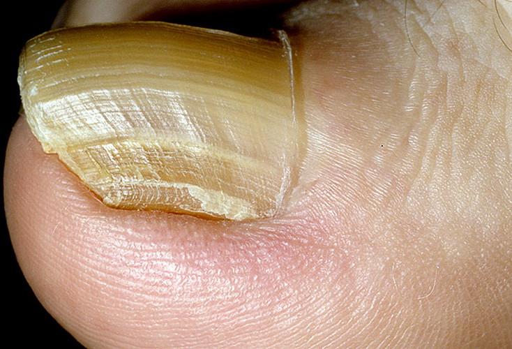 Утолщение ногтей на пальцах ног