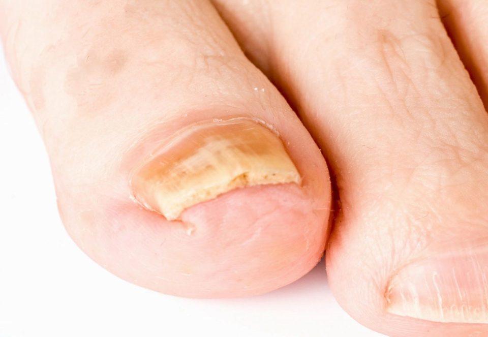 грибок ногтей на ногах препараты