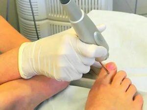 Удаление ногтевой пластины при грибке