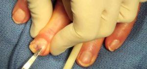 Удаление ногтя в домашних условиях