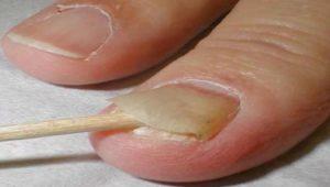 Самостоятельное удаление ногтя