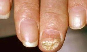 Грибок разрушает ногтевую пластину