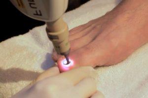Лечение лазером запущенного микоза