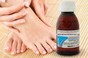 Перекись водорода при лечении грибка ногтей