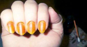 Лечение грибка йодом и укрепление ногтевой пластины