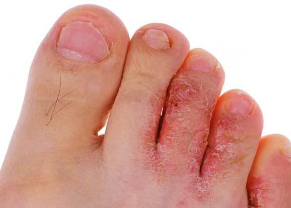 Как лечить грибок между пальцами ног