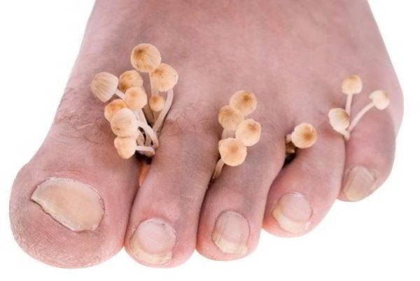 Грибок между пальцами ног лечение и причины заболевания