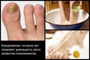 Лечение грибка большого пальца - процесс длительный