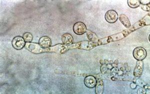 Epidermophyton: грибок в паху