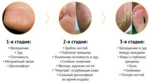 Лечение мазями всех стадий грибка ногтей на ногах