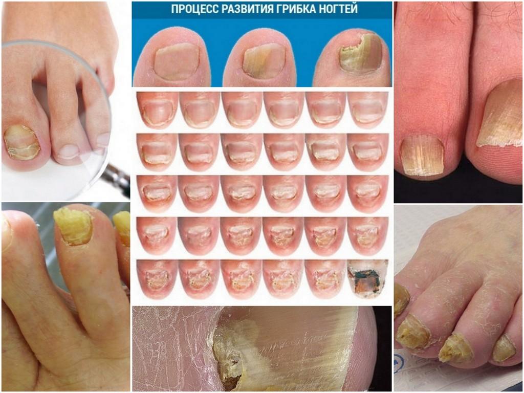 Грибок ногтя на ноге лечение сроки лечения