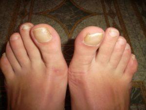 Грибок большого пальца ноги: внешний вид