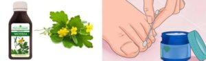 Обработка ногтей чистотелом