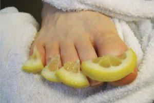 Лечение грибка ногтей на ногах лимоном