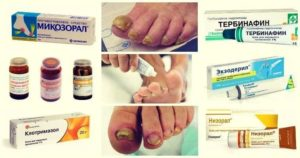 Многообразие кремов для лечения грибка большого пальца ноги