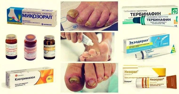Эффективный крем мазь для лечения грибка ногтей
