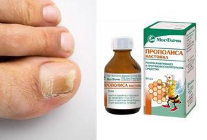 Регулярно используйте прополис, и грибок отступит