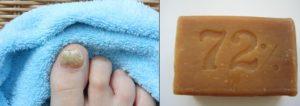 Хозяйственное мыло от грибка ногтей
