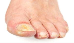 Грибок ногтей можно вылечить аиром