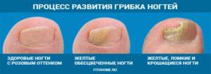 Грибок ногтя - стадии
