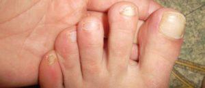 Керосин при грибке на ногтях