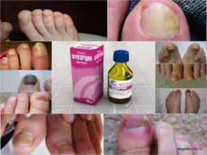 Фукорцин от грибка ногтей