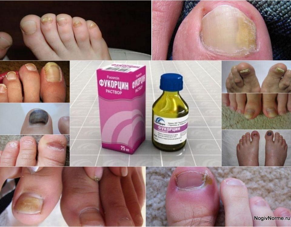 Лечение грибка ногтей йодомарином