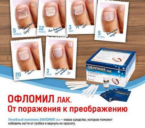 Лечим грибок ногтей офломилом