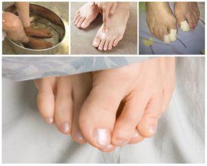 Применение бифосина при грибке ногтей