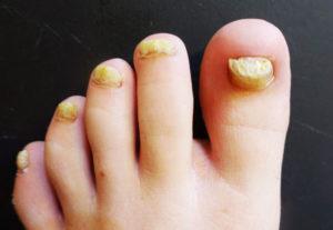 Грибок на ногтях перед лечением препаратом