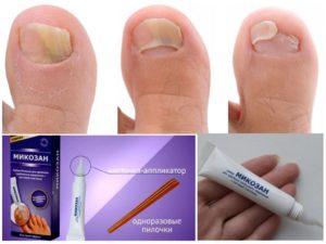 Процесс выздоровления от микоза на ногтях