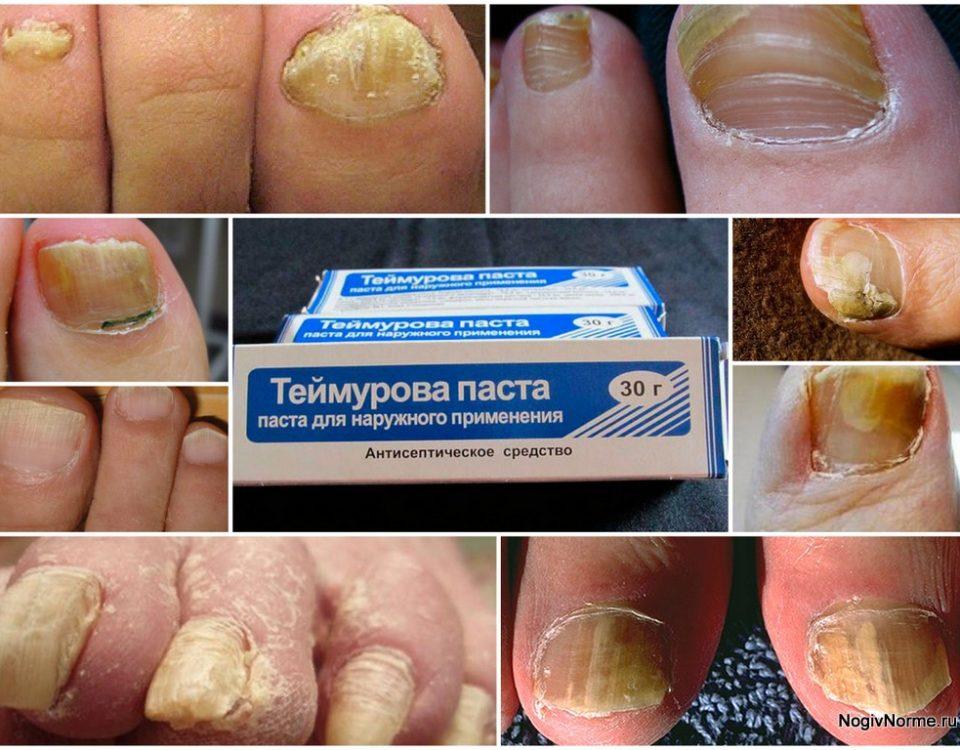 Лечение грибка ногтей пастой