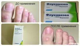 До и после лечения флуконазолом
