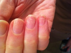 Поврежденные грибком ногти на фото