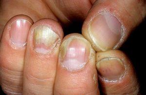 Распространение грибка на ногтях