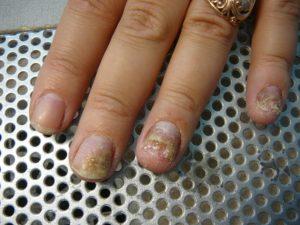 Разрушение ногтя из-за микоза