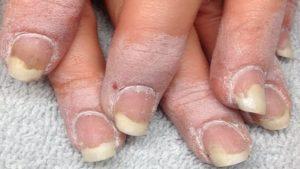 Распространение грибка ногтей на ткани