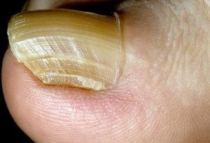Гипертрофический микоз ногтей