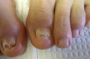 Атрофический микоз ногтей рук