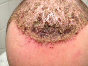 Фавус кожи головы
