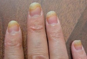 Ногти при микозе рук