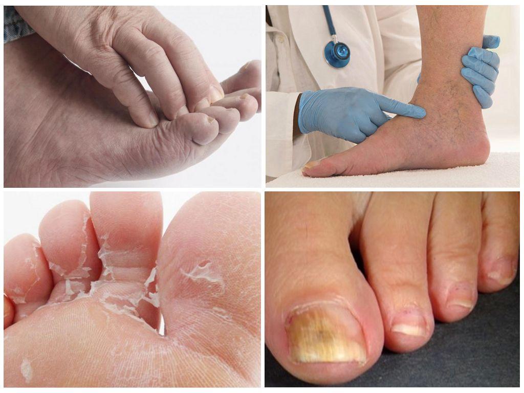 Чем лечат грибок стоп ног