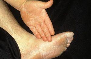 Стертая форма микоза проявляется шелушением