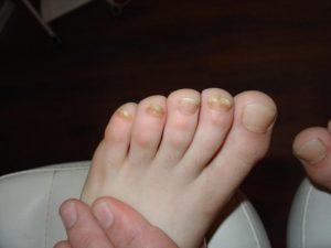 Грибок ногтей: перед анализом