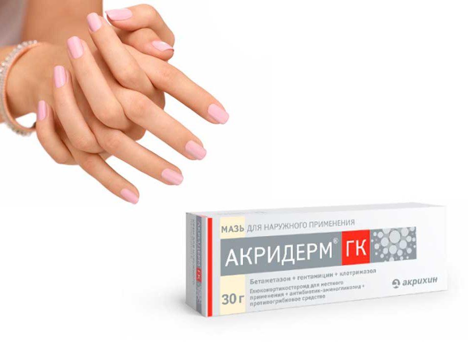 Акридерм при грибке кожи